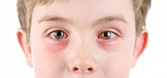 Síntomas de padecer infección en los ojos